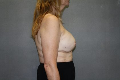 Breast Reconstruction Before & After Patient #2337