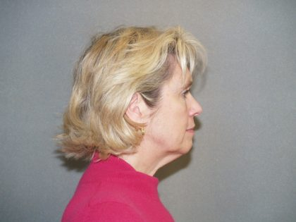 Facelift Before & After Patient #549