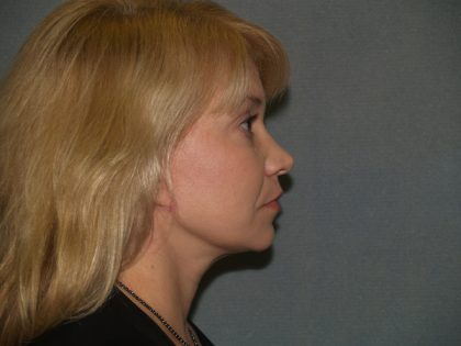 Facelift Before & After Patient #613