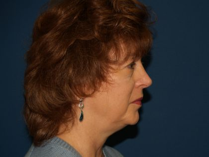 Facelift Before & After Patient #557