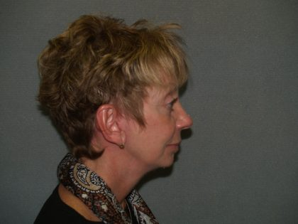 Facelift Before & After Patient #628