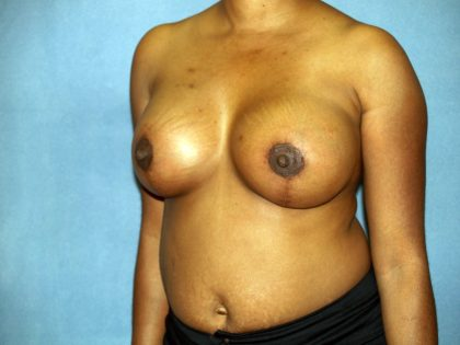 Breast Lift Before & After Patient #1523