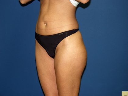Liposuction Before & After Patient #3744