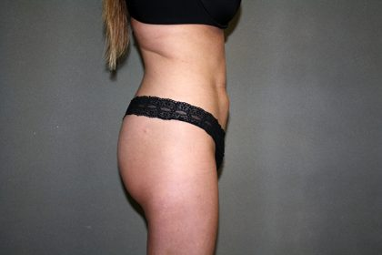 Liposuction Before & After Patient #3838