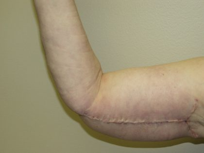 Arm Lift Before & After Patient #851
