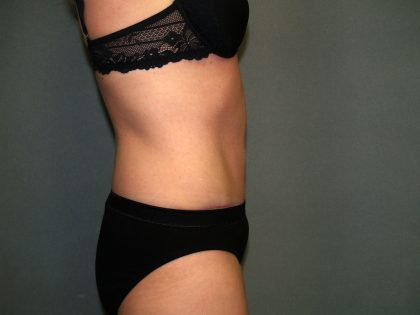 Tummy Tuck Before & After Patient #2280