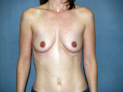 Breast Lift Before & After Patient #1467
