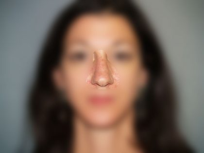 Nose Surgery Before & After Patient #773