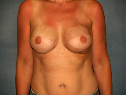 Breast Reconstruction Before & After Patient #2390