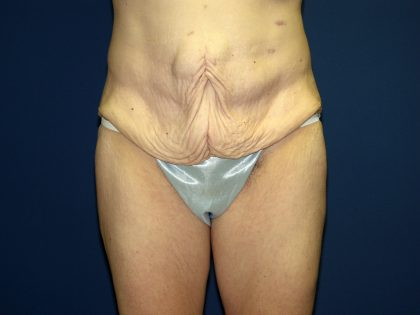 Circumferential Tummy Tuck Before & After Patient #884