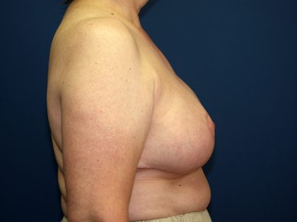 Breast Reduction Before & After Patient #3398