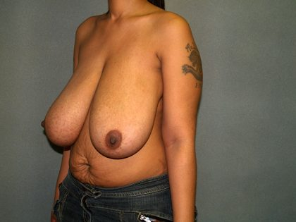 Breast Reduction Before & After Patient #3466