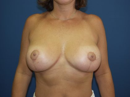 Breast Lift Before & After Patient #1558