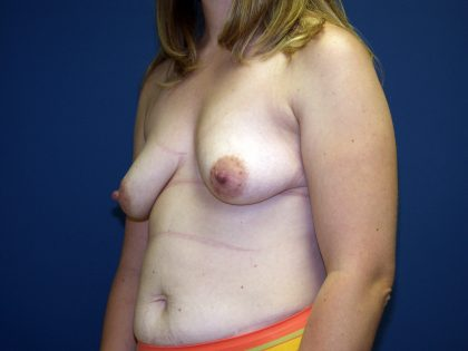 Breast Lift Before & After Patient #1495