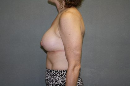Breast Lift Before & After Patient #1488