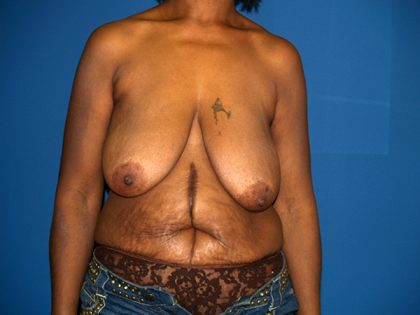 Breast Reduction Before & After Patient #3255