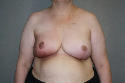 Breast Reconstruction Before & After Patient #1846