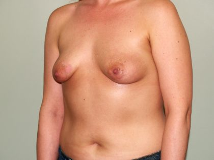 Breast Lift Before & After Patient #1439