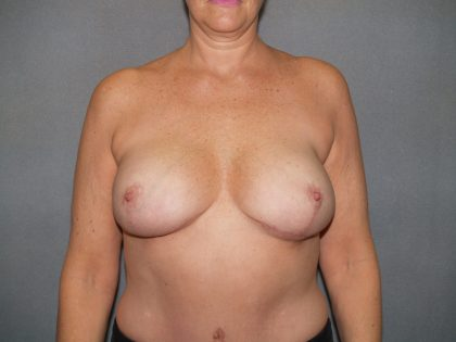 Breast Reconstruction Before & After Patient #2273
