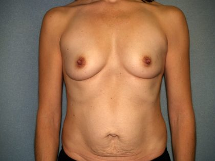 Breast Reconstruction Before & After Patient #1920