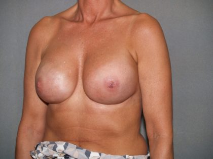 Breast Reconstruction Before & After Patient #1760