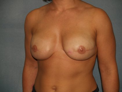 Breast Reconstruction Before & After Patient #2116