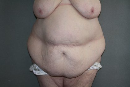Tummy Tuck Before & After Patient #2047