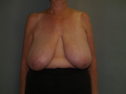 Breast Reduction Before & After Patient #3441