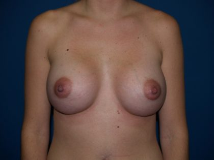 Breast Augmentation Before & After Patient #2433