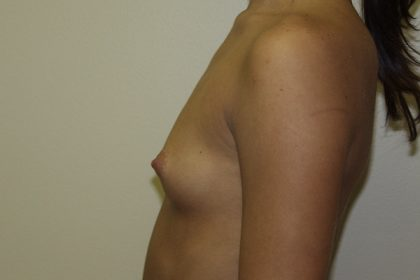 Breast Augmentation Before & After Patient #2710