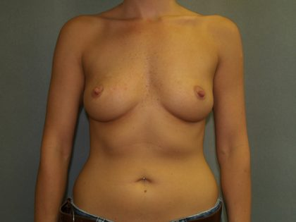 Breast Augmentation Before & After Patient #2738