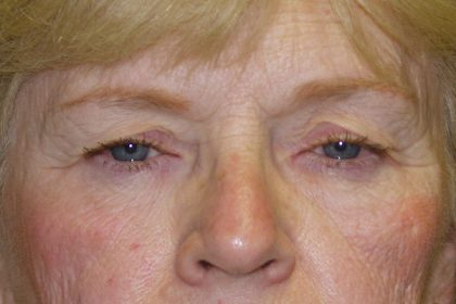 Eye Surgery Before & After Patient #702
