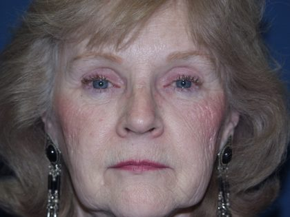 Brow Lift Before & After Patient #526
