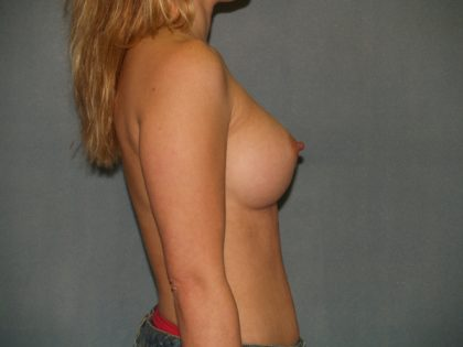 Breast Augmentation Before & After Patient #2773