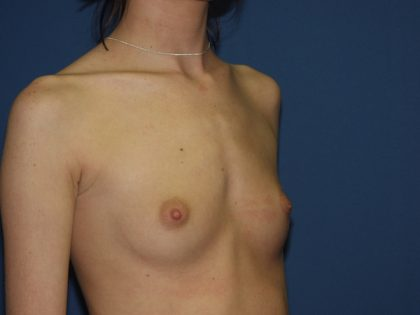 Breast Augmentation Before & After Patient #2962