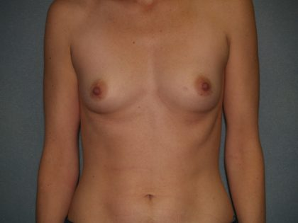 Breast Augmentation Before & After Patient #3060