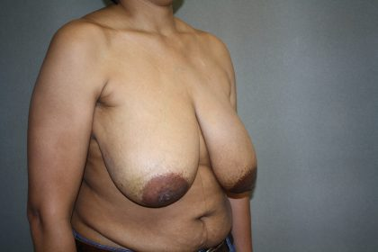 Breast Reconstruction Before & After Patient #1732