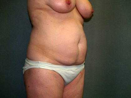 Tummy Tuck Before & After Patient #2208
