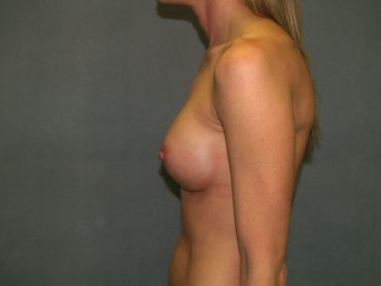 Breast Augmentation Before & After Patient #3025