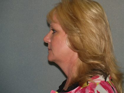 Facelift Before & After Patient #578