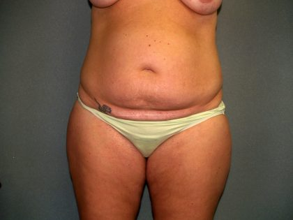 Tummy Tuck Before & After Patient #2417