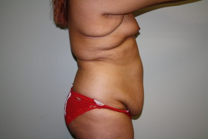 Tummy Tuck Before & After Patient #1961