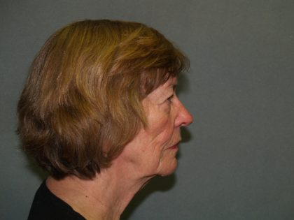Facelift Before & After Patient #592