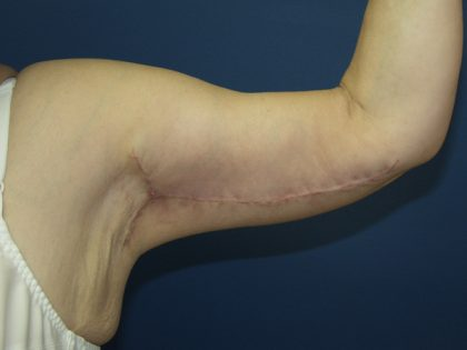 Arm Lift Before & After Patient #860