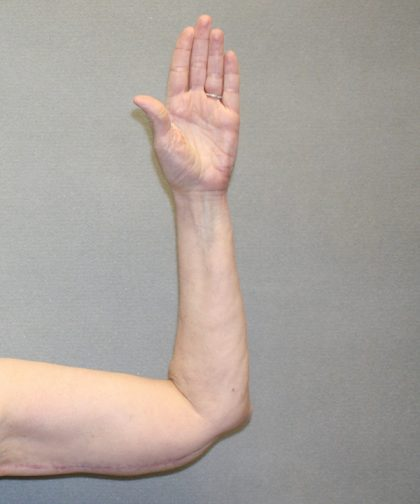 Arm Lift Before & After Patient #841