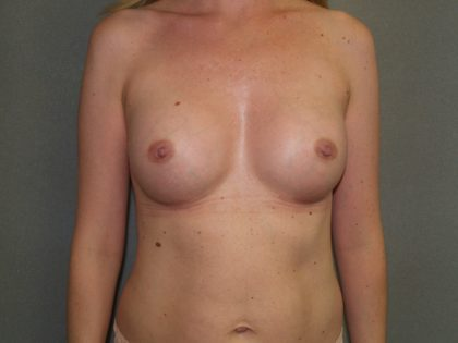 Breast Augmentation Before & After Patient #2724