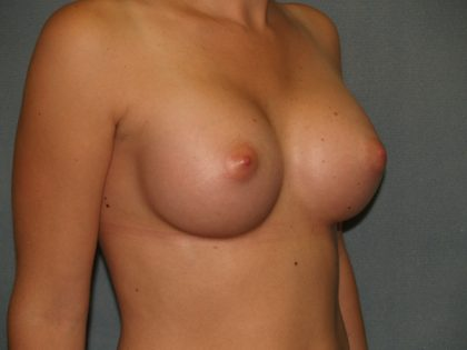 Breast Augmentation Before & After Patient #2612