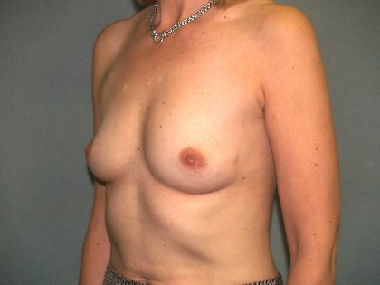 Breast Augmentation Before & After Patient #2731