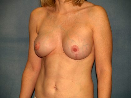 Breast Reconstruction Before & After Patient #1746