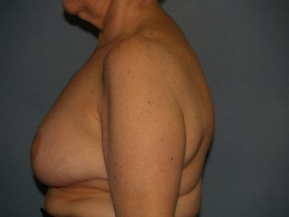 Breast Reduction Before & After Patient #3272